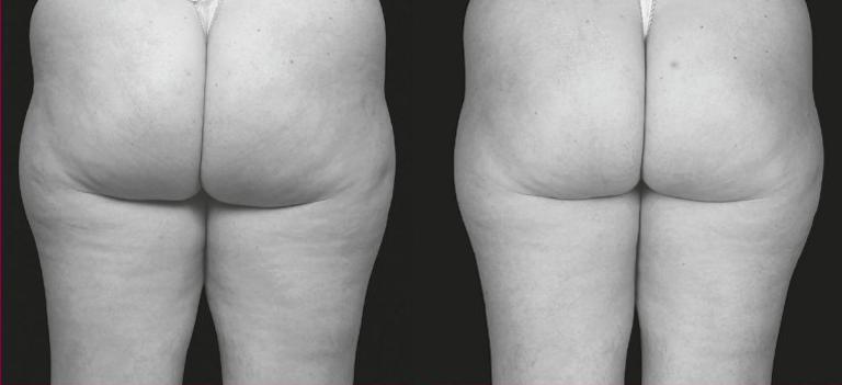 Cellulitbehandling